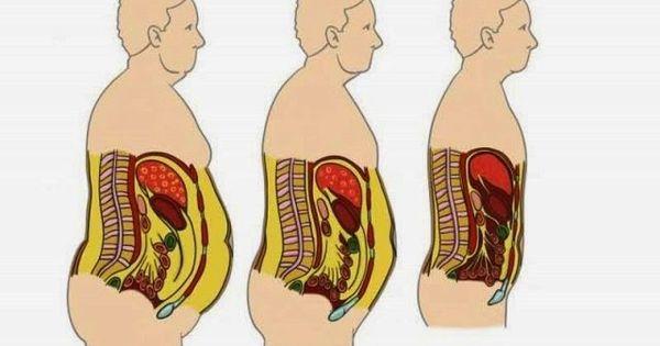 Una experiencia bajar de peso rapido consecuencias momento