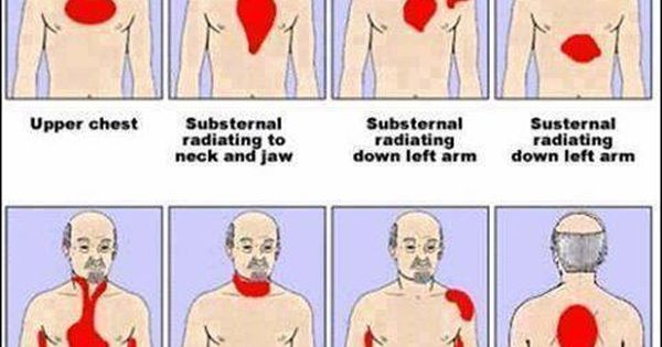 Lopressor For Chest Pain