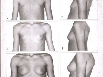Transgender Breast Growth Timeline
