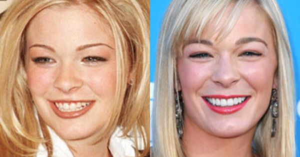 Dental Makeover Before and After Photo   LeAnn Rimes. 17 Best images about Celebrity Dental Makeovers on Pinterest