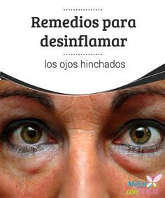 Remedios Para Desinflamar Los Ojos Hinchados Ojos Hinchados Remedios Para Ojos Hinchados Parpados Hinchados
