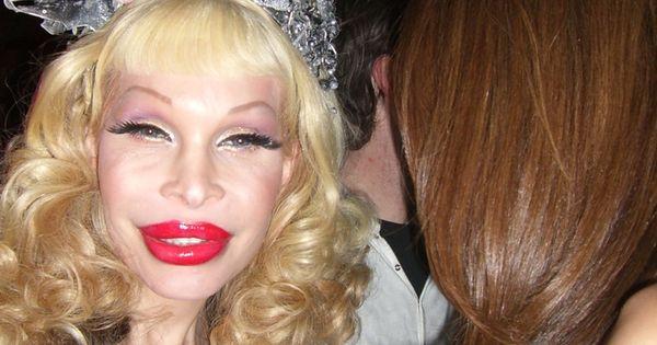 Botox Gone Wrong Stories A Little Unusual Pinterest