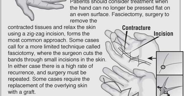 Information graphic about Dupuytren's contracture with ...
