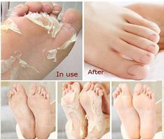 how to remove rough skin on feet