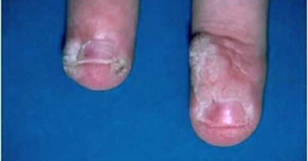 how to kill a finger wart