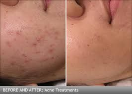 Pin On Laser Treatment In Lahore