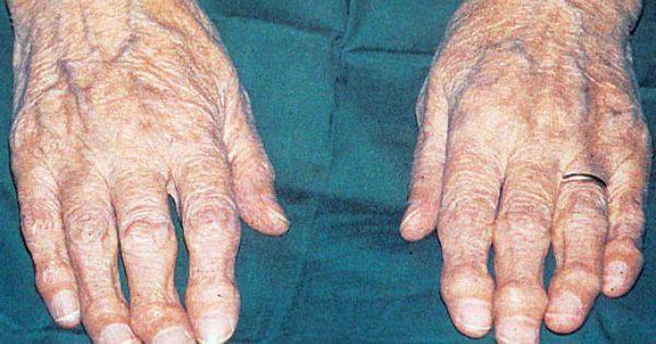 Natural Healing For Heberden S Nodes Osteoarthritis