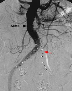 Thrombosis Of The Endograft With Absence Of Filling Of The Left Limb Bifurcation Emergency Medicine Thrombosis Oncology