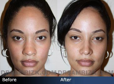 Case 8 Rhinoplasty Before And After Front View Contorno De