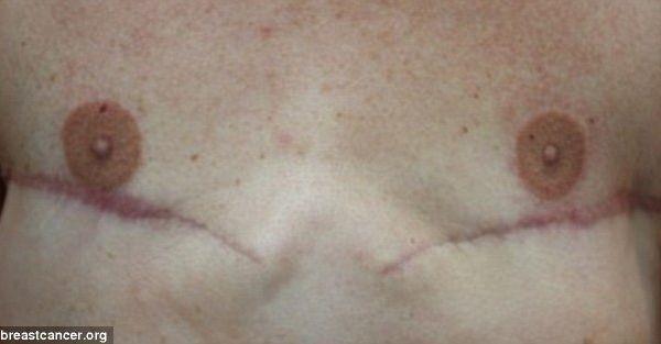The tattoo artist transforming mastectomy patients for Three d nipple tattoos