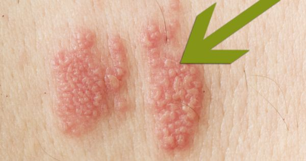mononucleosis treatment steroids
