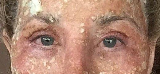 3 Days After Co2 Fractional Laser On Eyes Laser Resurfacing Fractional Laser Profractional Laser