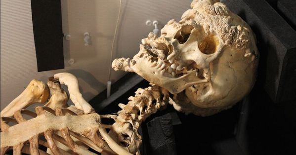 Merrick's skeleton still displays the visibly horrific ...