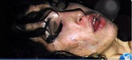 Winehouse Faces His Last Photo Exposure Emaciated Face Of