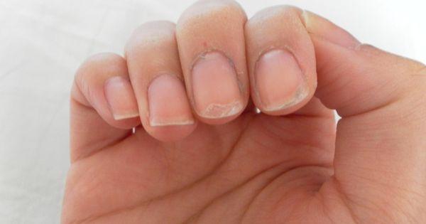 Antifungal Nail Polish >> Reasons for having peeling nails. You lack biotin, sulfur ...