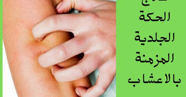 علاج الحكة الجلدية المزمنة بالاعشاب تحتوي بعض الاعشاب على زيت المنثول بنسة كبيرة وهو يعمل على الحد من الالتهابات وعلاج الحكة الجلدية