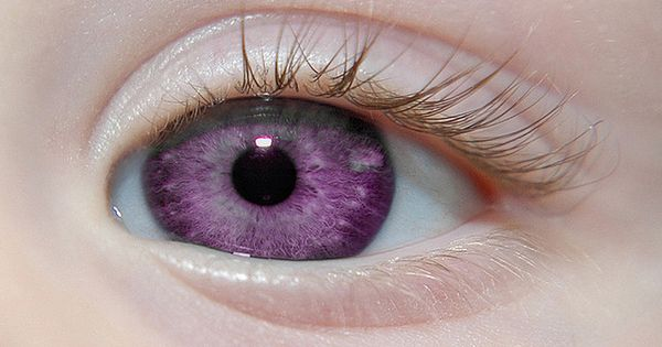 "Alexandria's Genesis, also known as ""violet eyes"" (a mutation). When someone is"