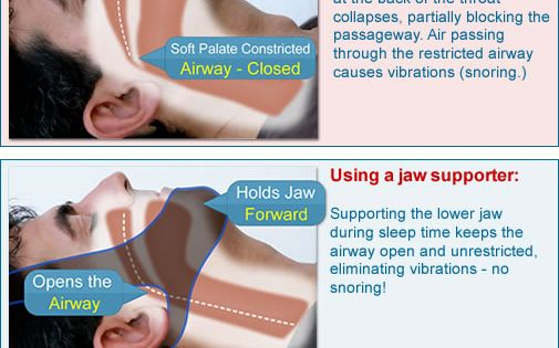 An Effective Anti Snoring Solution My Snoring Solution