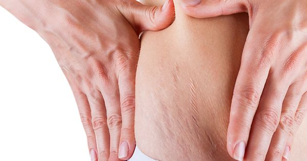 Top 10 Ways to Get Rid of Stretch Marks Fast | Hair & Beauty at