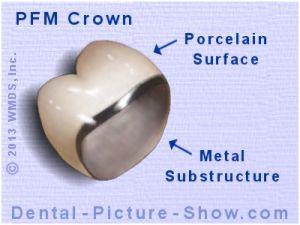 Porcelain Fused To Metal Crowns Pfm S Advantages Disadvantages Dental Crowns Dental Dental Restoration