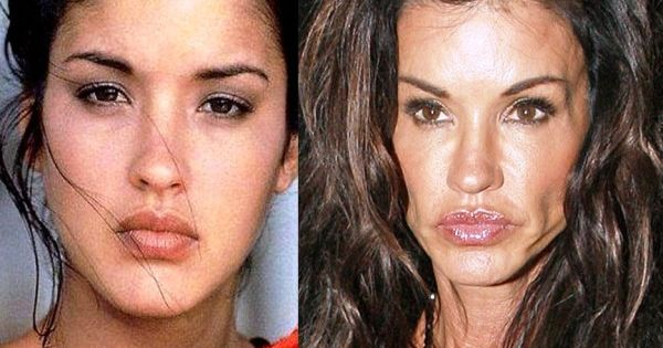 15 Shocking Facts About Plastic Surgery | TheTalko