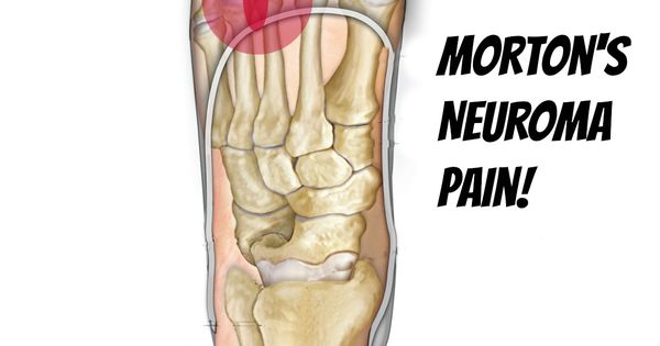 Morton S Neuroma Self Help Tips Treatment And