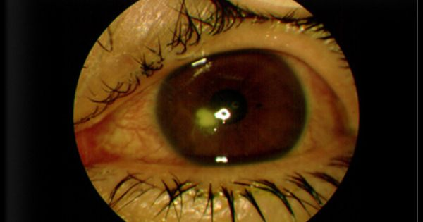 Symptoms Of A Corneal Ulcer Include Red Eyes Pain
