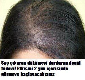 Kellige Son Sac Cikaran Dogal Kur Bayanlar Kahvesi Com Hair