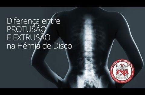 Youtube Hernia De Disco Qual E A Diferenca Neurocirurgiao