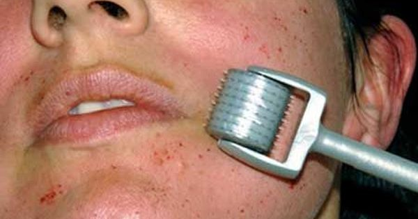Acne Scars Treatment With Dermaroller Types Of Acne Scars