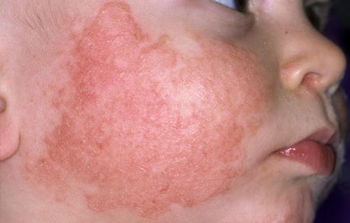 Atopic Dermatitis On The Cheek Of A Child Eosinophilic