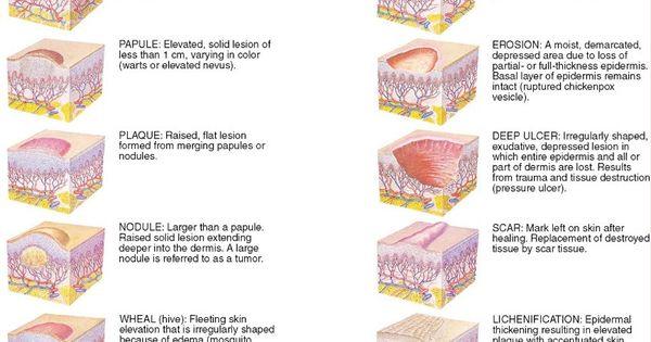 diabetes case study evolve