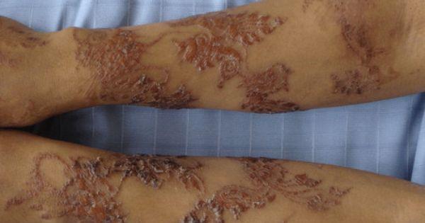 Black Henna Scars