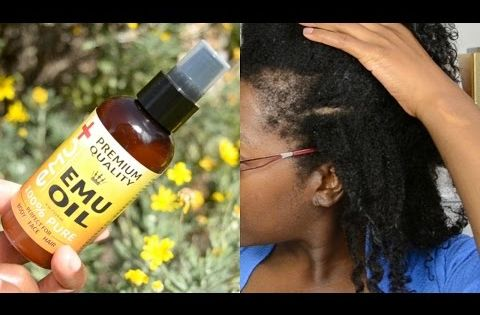 EMU OIL FOR TRACTION ALOPECIA BALD SPOT AND THIN EDGES
