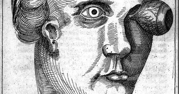 Georg Bartisch: Prolapso da íris