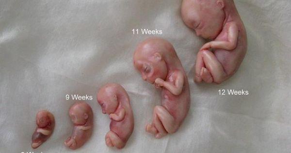 Fetal Development 8-12 Weeks | Life | Pinterest | Babies ...