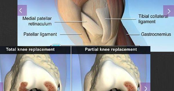 Interactive knee anatomy