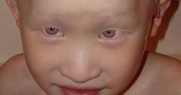 Natural Violet Eyes Albanism