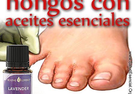 El hematoma sobre el dedo del pie bajo la uña que curar