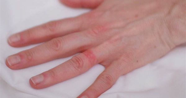Wedding Ring Rash A Real Life Seven Year Itch