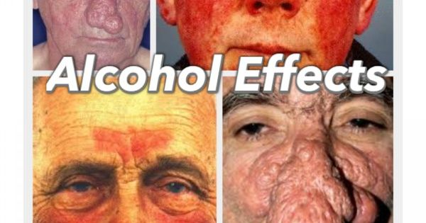 Morton S Neuroma Natural Treatment Iron Overload