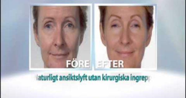 yngre hud utan kirurgi