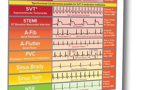ekg ecg cheat sheet 11 basic rhythms nurses need to know download so you can recognize the. Black Bedroom Furniture Sets. Home Design Ideas