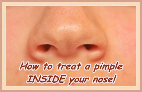 How To Get Rid Of A Pimple In Nose