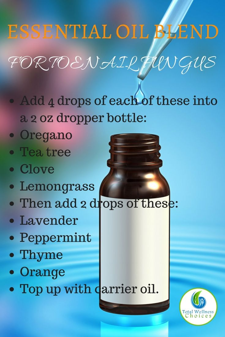 Use this essential oil recipe for toenail fungus to prepare a blend to treat your toenail fungus naturally