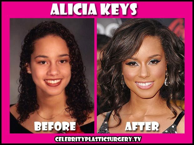 Alicia Keys Plastic Surgery Pics - Before & After