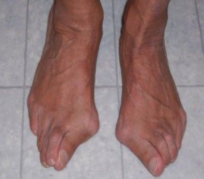 How to Get Rid of Bunions You will always feel that it is high time to know how to get …