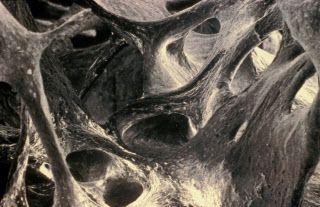 Os trabéculaire. Ce réseau mystérieux de cavités est un os trabéculaire. Aussi appelé os spongieux, il constitue environ 20 % de la masse osseuse, les 80 % restants étant formés par l'os cortical ou os compact. On voit ici l'architecture trabéculaire des travées osseuses, qui joue un rôle important dans la résistance mécanique de l'os.