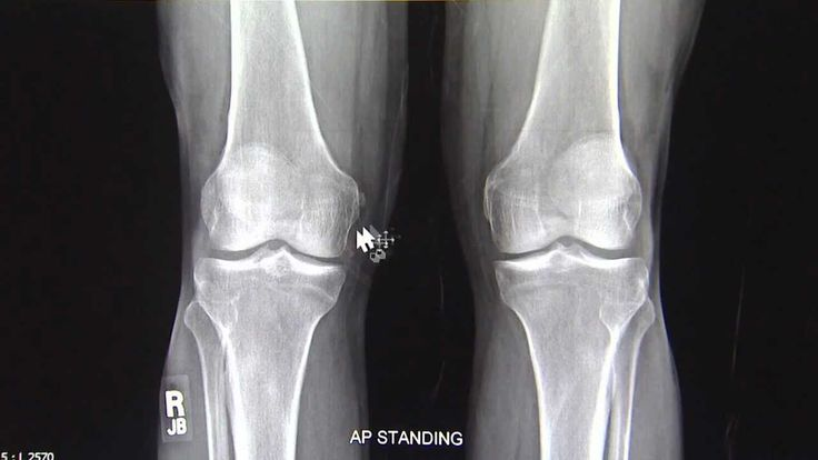 Dr Paul Siffri discusses his routine X-rays for patients being investigated for knee arthritis. This is Part 1 of his series.