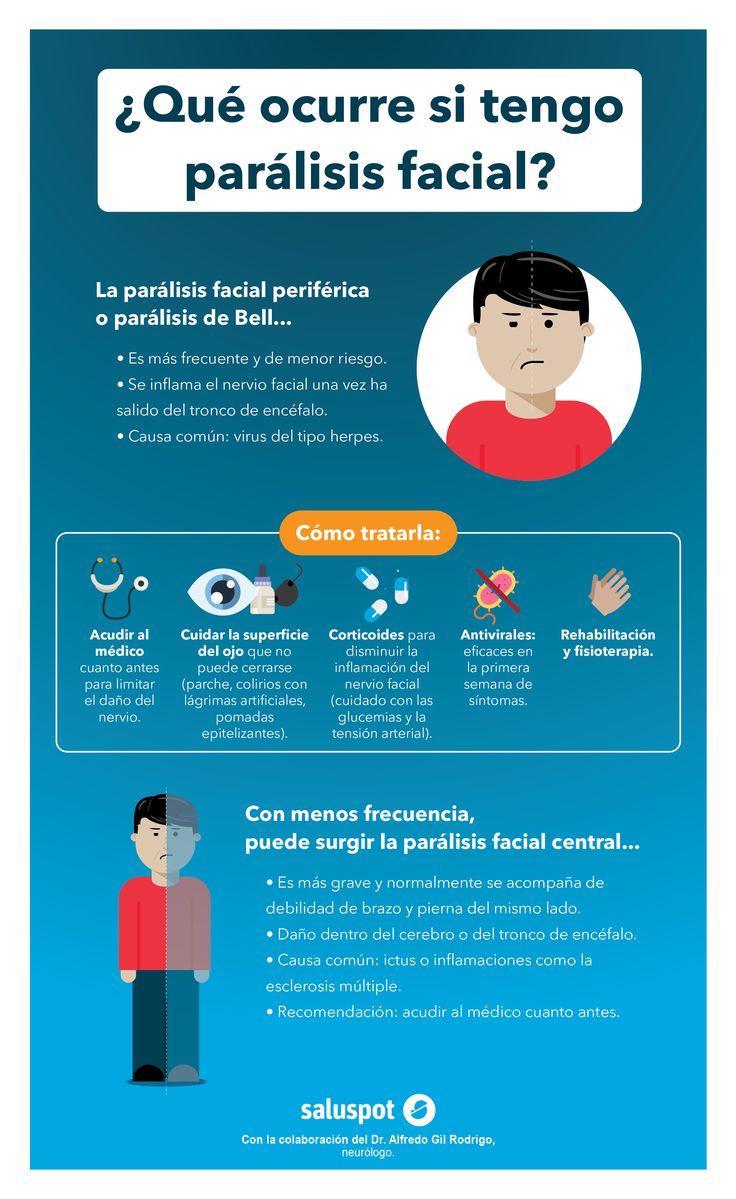 Infografía sobre la parálisis facial, en colaboración con el Dr. Alfredo Gil Rodrigo.